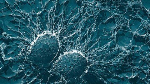 Microscope image of pathogen